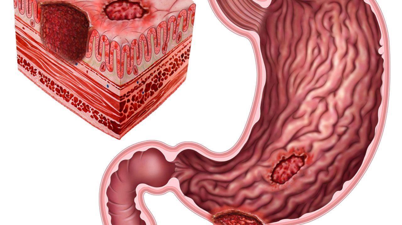 Давление при язве желудка: диагностика, лечение